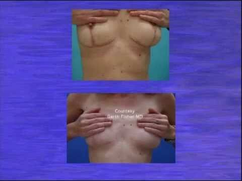 lift complications picture breast