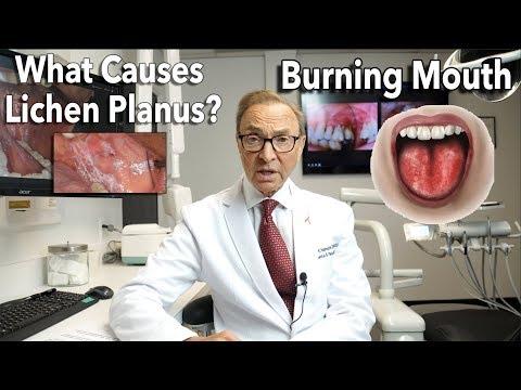 Lichen Planus - Burning Mouth Symptoms | Causes | Treatment