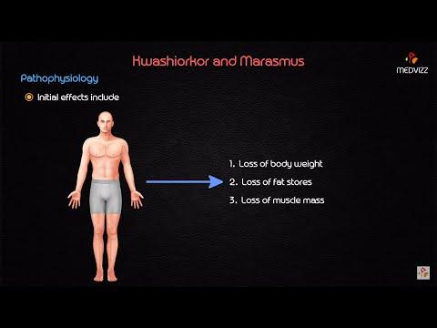 Kwashiorkor and marasmus - USMLE Biochemistry