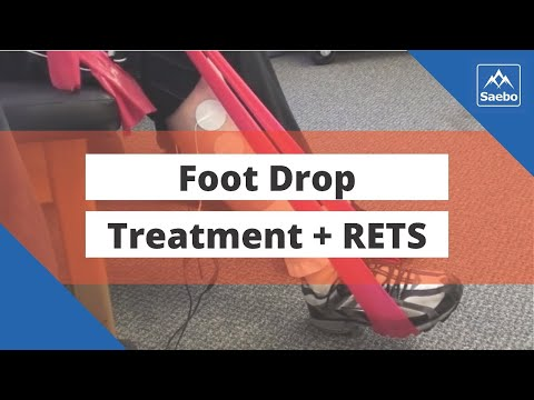 Foot Drop Treatment -  Using Reciprocal EMG Triggered Stimulation
