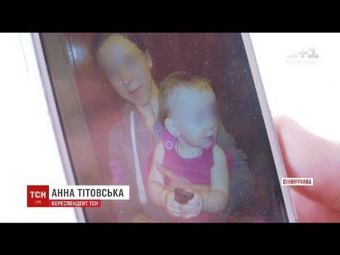 На Вінниччині через опіки померла півторарічна дівчинка