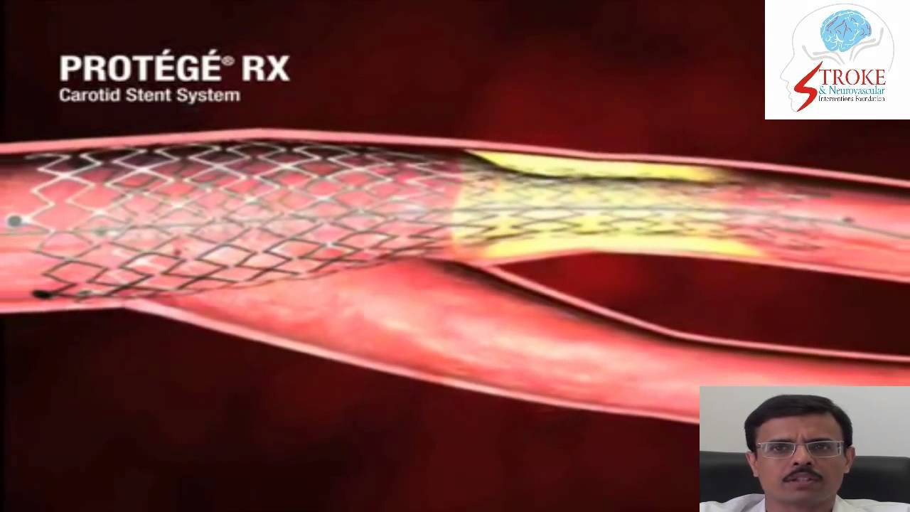 Carotid Stenting Technique