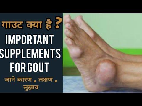 गाउट-में-लाभकारी-फूड-सप्लीमेंट-|-supplements-for-gout