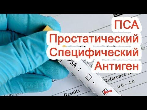 Простатический Специфический Антиген – ПСА / Доктор Черепанов