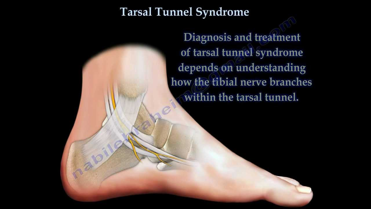Tarsal Tunnel Syndrome - Everything You Need To Know - Dr. Nabil ...