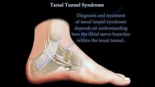 Tarsal Tunnel Syndrome Stretches & Exercises - Ask Doctor Jo.