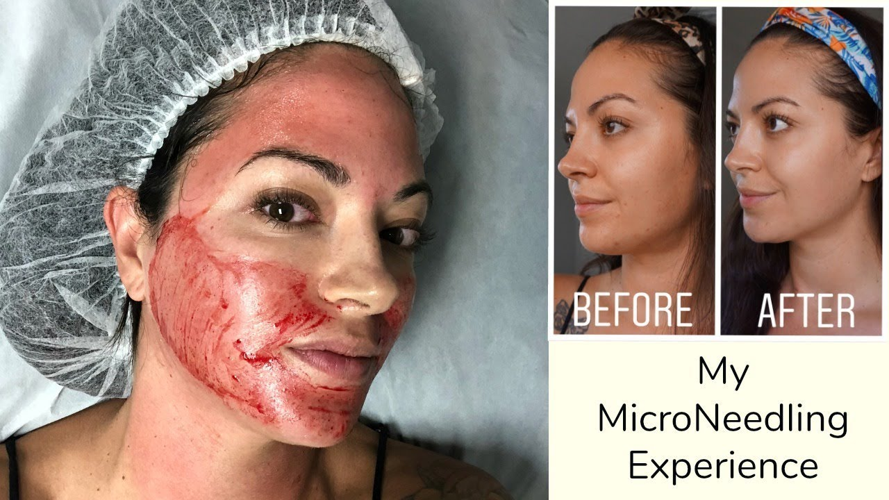 My MicroNeedling Experience | For Acne Scars | Before & After