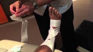 Strapping de la cheville après une fracture spiroide du péroné