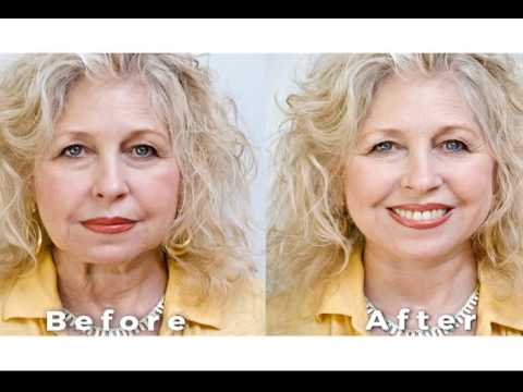 Art Harding's Instant Face and Neck Lift | Christel Products