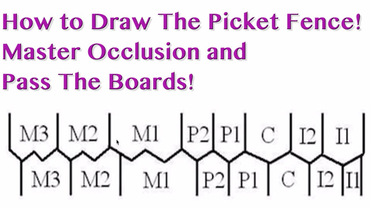 Occlusion Picket Fence Nbde Part 1 Boards Study Youtube
