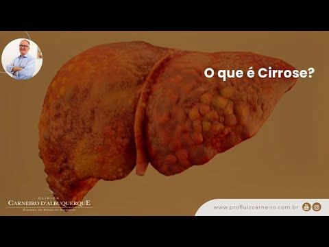O que é Cirrose - Por Prof Dr Luiz Carneiro 0612