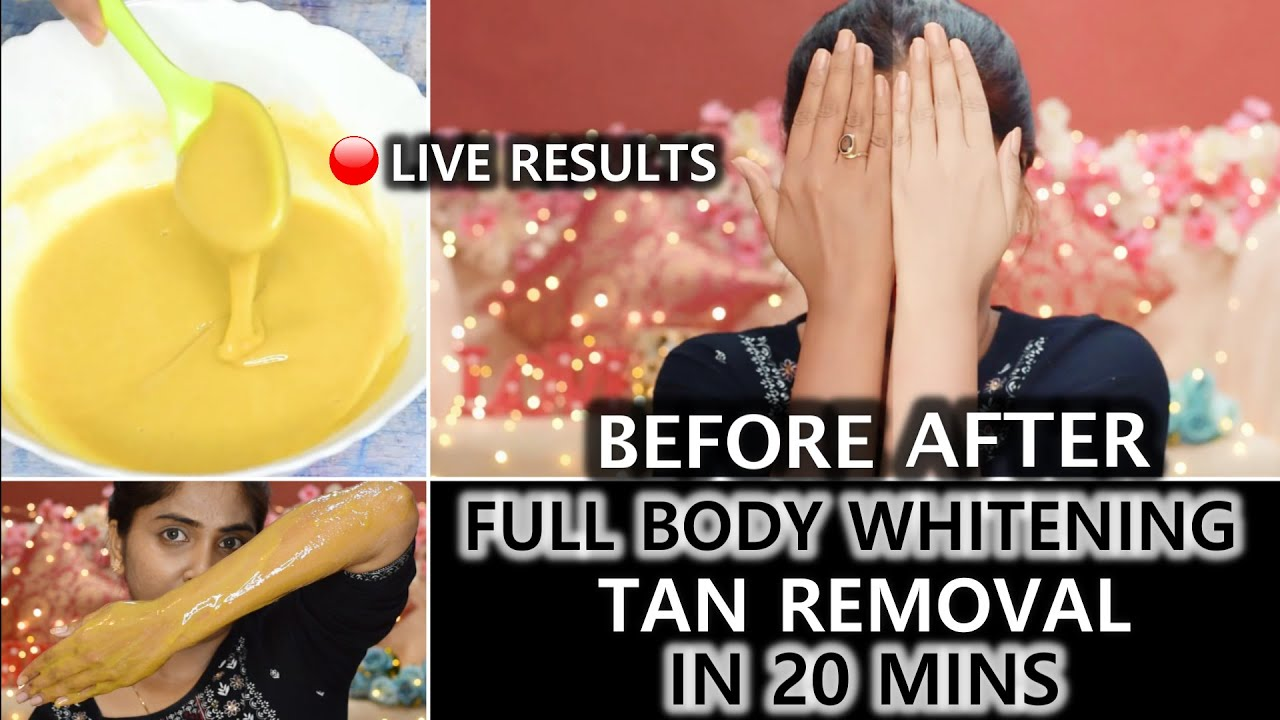 बरसो पुरानी ज़िद्दी TANNING को हटाये रंग साफ़ करे | Full Body Whitening Formula-Hands Legs Neck & Bum