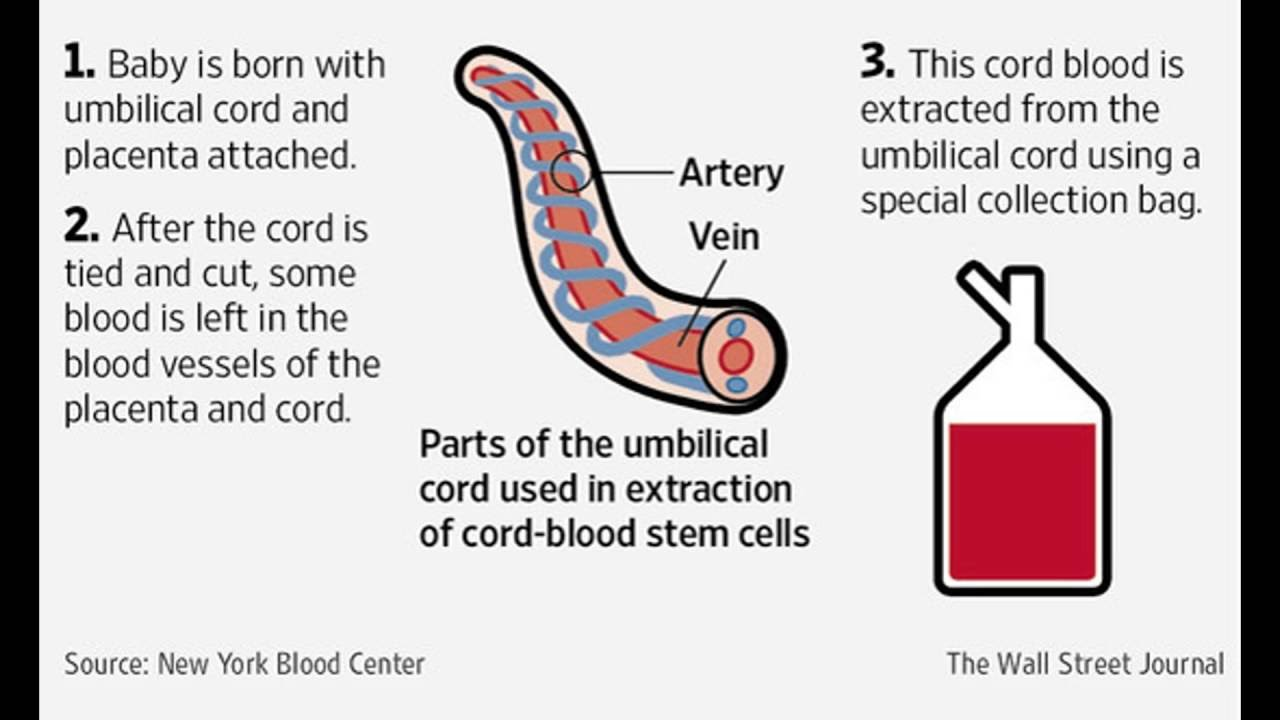 Cord Blood Banking Cost >> Cord Blood Banking Cord Blood Banking Cost How It Works Cord