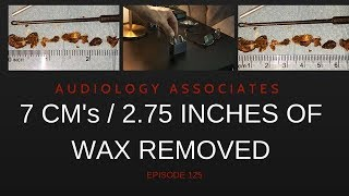 7CM/2.25IN DRY EAR WAX REMOVAL - EP 125