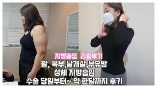 상체 지방흡입수술 리얼후기 |  팔, 복부,날개살,부유…