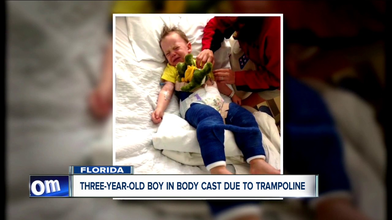 Three-year-old boy injured due to trampoline-related ...