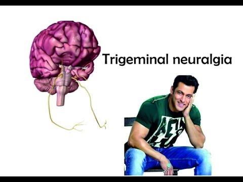 Trigeminal neuralgia : Nerve origin, course and supply