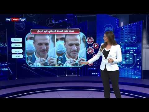 هل استخدم الفوتوشوب بصورة وزير الصحة اللبناني ؟  - نشر قبل 2 ساعة