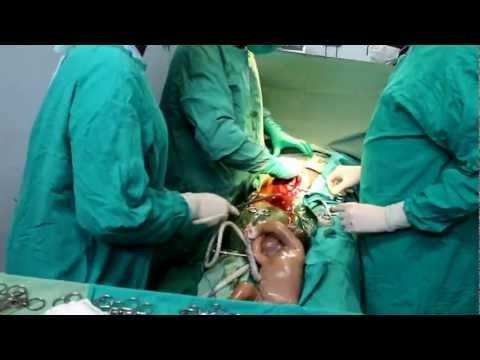 Parto Cesareo Al Chaaria Mission Hospital