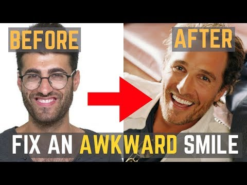 How to FIX an AWKWARD Smile | Develop a MAGNETIC Smile Women Will Love