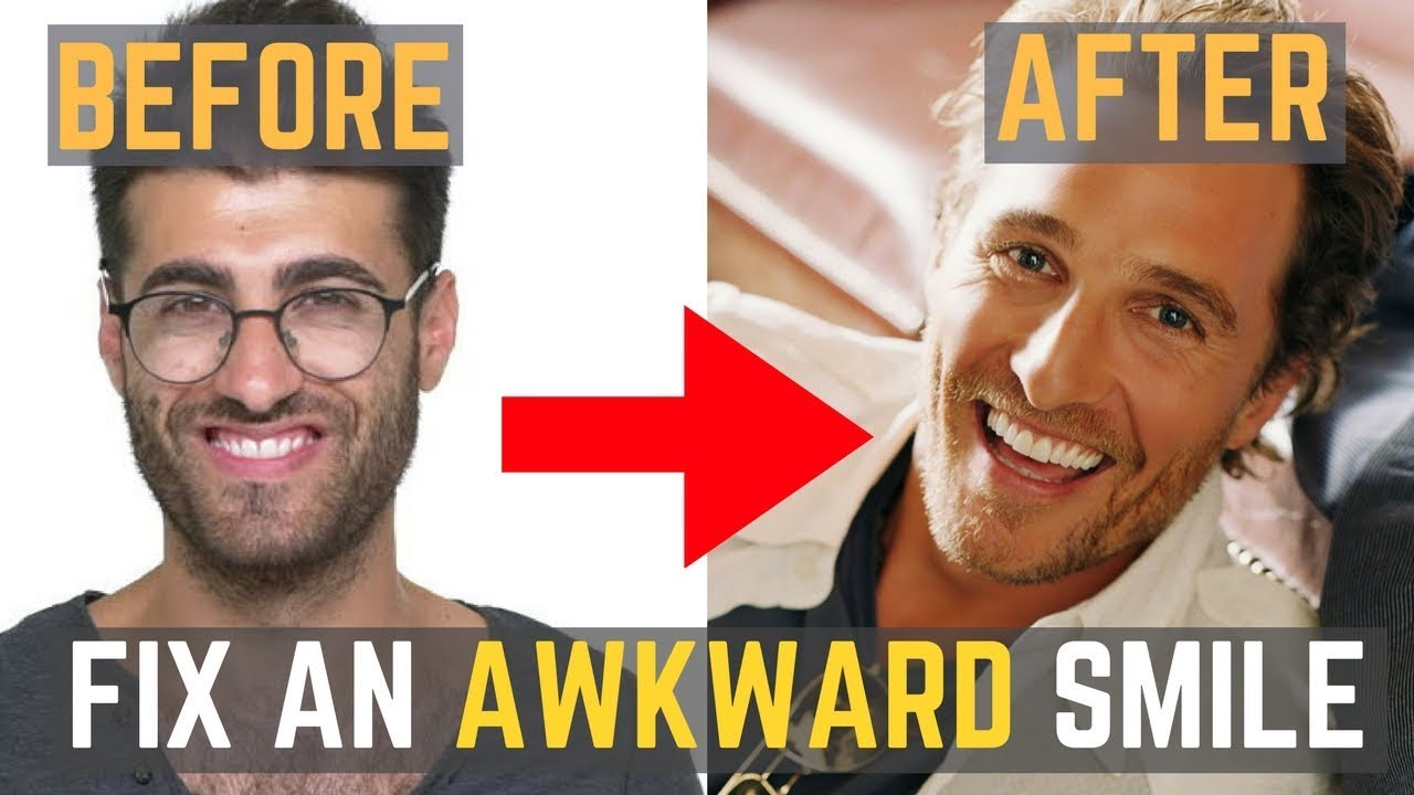 Celebrity Smiles: before and after   Celebrities   Teeth ...