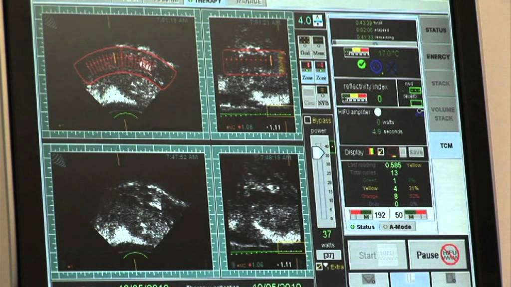 prostata behandlung mit ultraschall