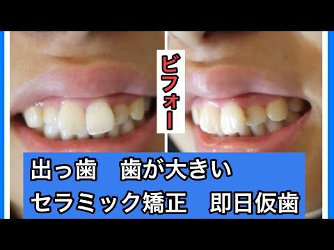写真を撮る時や人と話す時に歯を見せて笑えることが何より幸せ