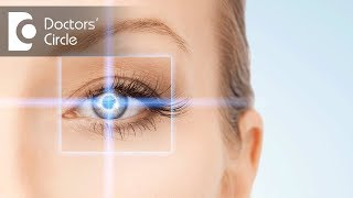 Can you get a laser surgery if you have astigmatism in eye? - Dr. Mala Suresh