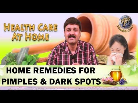 HOME REMEDIES FOR PIMPLES, ACNE AND DARK SPOTS.II कील, मुहासों और काले धब्बो का घरेलू उपचार II