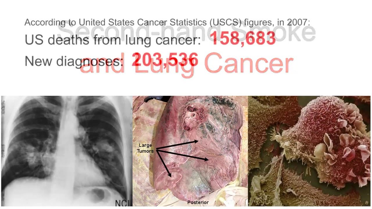 secondhand smoke lung cancer Lung cancer lung cancer is the #1 cancer killer in the united states, and secondhand smoke is a contributor each year more than 7,300 lung cancer deaths are caused by secondhand smoke heart disease breathing in smoke-filled air harms more than your lungs.