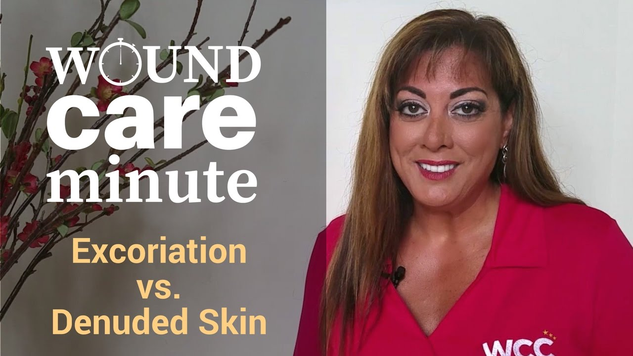 Denuded skin galleries 18