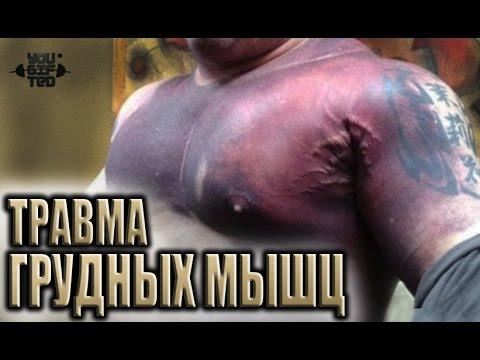 Реабилитация после травмы груди! Ян Цабут