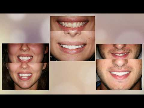Before and After Photos Canberra | Civic Gentle Dental Care (02) 8090 1107