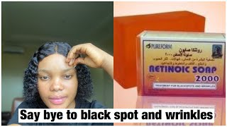 HOW TO GET RID OF BLACK SPOT AND WRINKLES ON FACE RETINOIC SOAP  #skincare #wrinkles