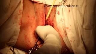 Операция при опущении задней стенки влагалища (ректоцеле)