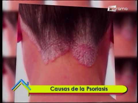 Causas de la Psoriasis