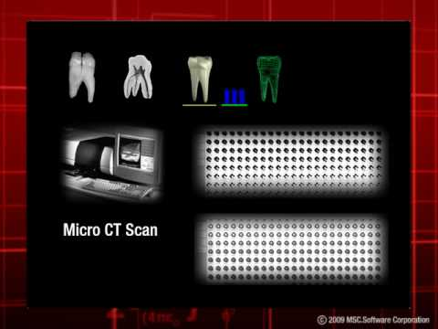 Virtual prototyping in the field of Dental Restoration