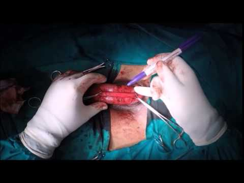 Correction of Penile Curvature Without Shortening