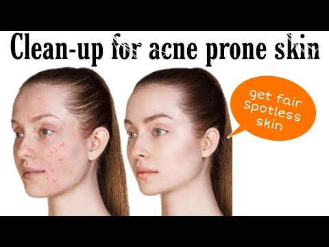 How To Do Clean-up For Acne Prone Skin At Home | Roven Makeovers
