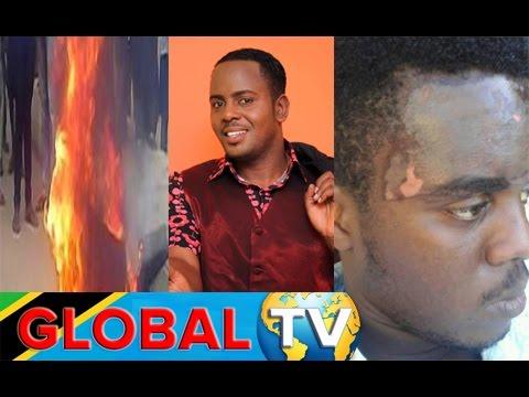 Baada ya Muigizaji wa Nigeria Kuchomwa Moto, Mrirthi wa Kanumba Aunguzwa na Kemikali Usoni