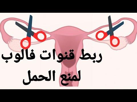 عملية ربط الرحم لعدم الانجاب عملية الربط ربط قنوات فالوب Tubal Ligation Or Tubal Sterilization Youtube