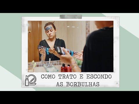 COMO TRATO E ESCONDO AS MINHAS BORBULHAS | Adri da Silva