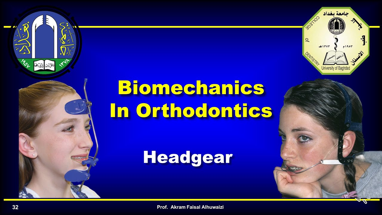 Download Use of headgear in Orthodontics