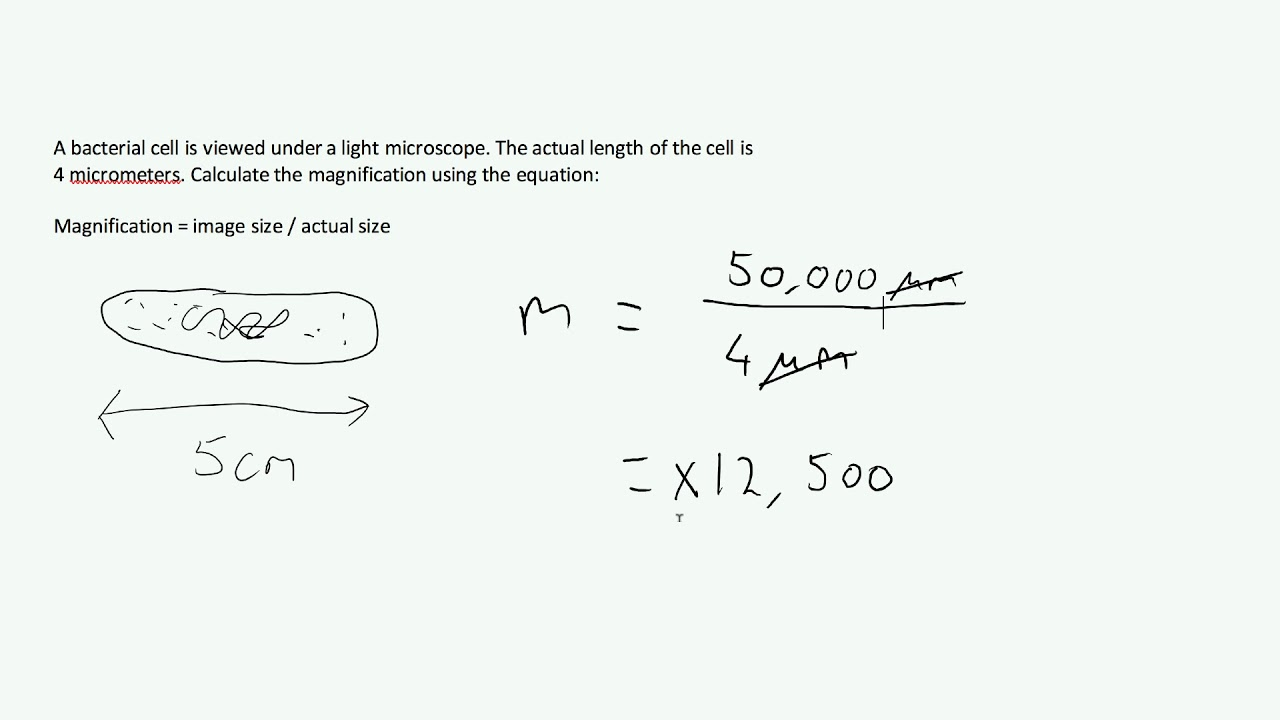 Microscopes & Magnification - Exam Question AQA GCSE Biology