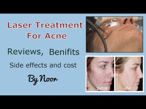 Laser treatment for acne - Reviews, benifits ,Side effects and cost by Noor