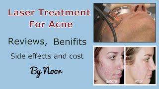 Laser Treatment Acne