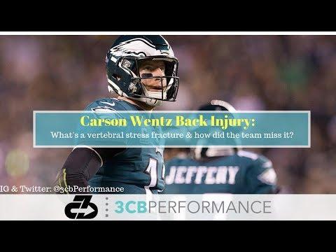 [OC] Carson Wentz's back injury: Explaining his vertebral stress fracture & if the med team missed it