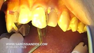 How We Fix a Chipped Tooth