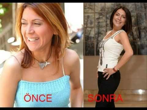 Çakıl Taşları (FOX - 2010) ÖNCE | SONRA