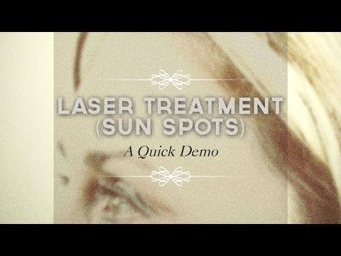 Laser treatment of sun spots